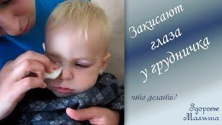 Смотреть онлайн Что делать если у малыша закисает глаз
