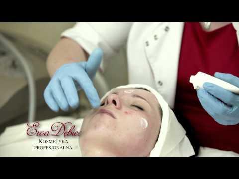 Trattamento di agopuntura di un dorso