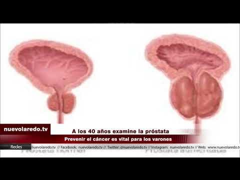 Příznaky a léčba prostaty