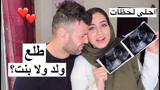 شهد عملت سونار لأول مرة | ولد ولا بنت ؟!! سيامند و شهد