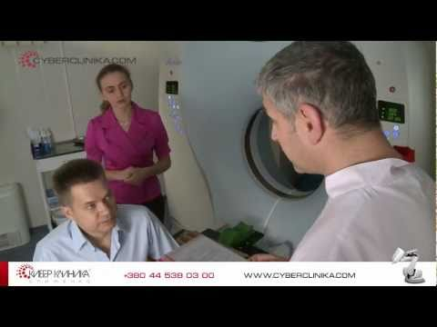 Эндоваскулярная эмболизация предстательной