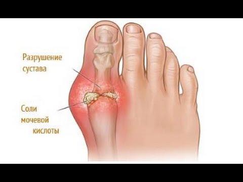 Боль в коленном суставе при пробежке