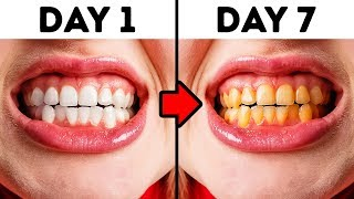 Gambar cover 10 Mistakes You Make While Taking Care of Your Teeth