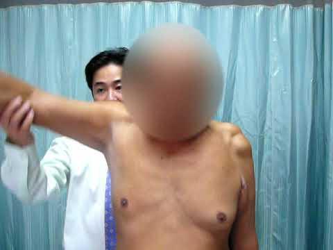 Massive Rotator Cuff Injury And Arthropathy