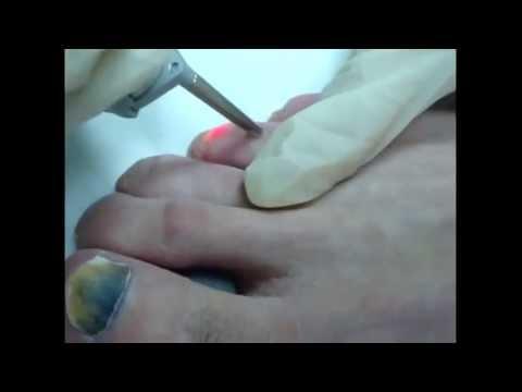 Wie gribok in der Nase dem Kind zu heilen