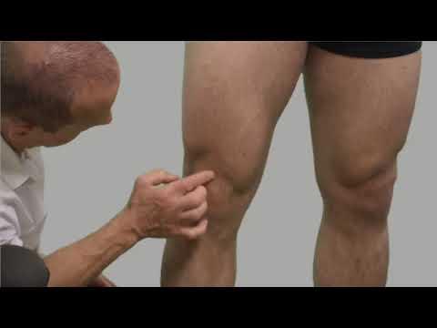 A vállízület osteoarthrosisának kezelési módszerei