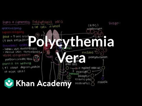 What is polycythemia vera? (video) Khan Academy