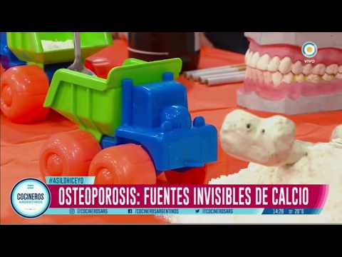 Cómo afecta la osteoporosis al hombre y a la mujer