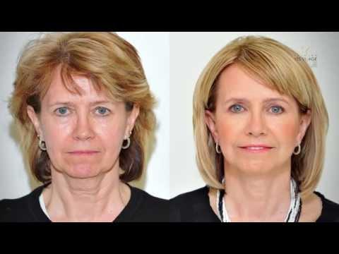 Recenze léčby hydrodermov proti stárnutí