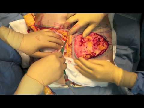 Malattie delle articolazioni delle dita e il loro trattamento