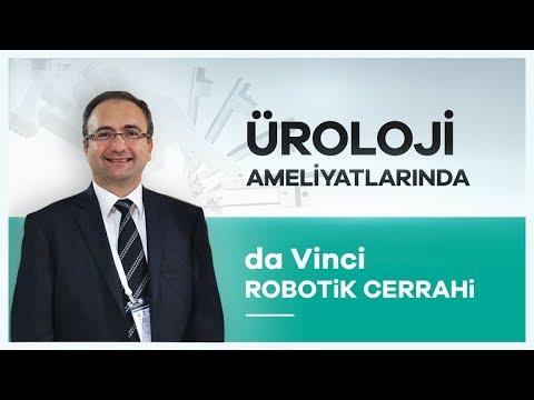 Robotik Cerrahinin Ürolojide Kullanım Alanları-