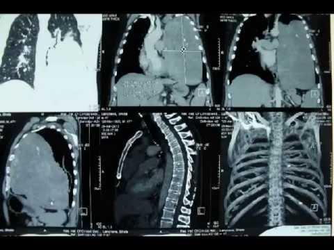 Operacja olbrzymiego nerwiaka osłonkowego śródpiersia