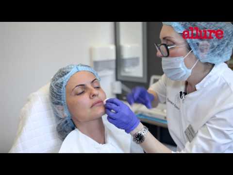 Коррекция возрастных изменений кожи лица «инъекциями молодости»