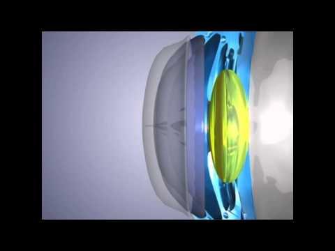 Снизить глазное давление народными средствами