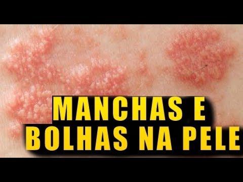 Razão de eczema Ayurveda