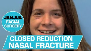 CLOSED REDUCTION NASAL FRACTURE - DR. TANVEER JANJUA - NEW JERSEY