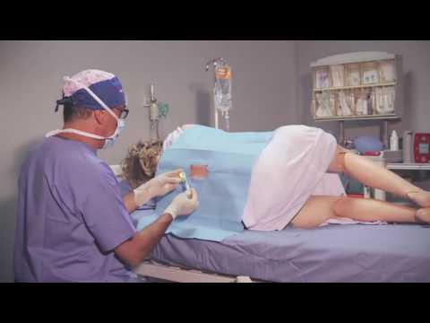 Artroscopia diagnostica del prezzo ginocchio
