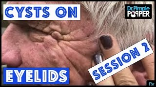 Cysts that weigh very HEAVY on the EYELIDS Session 2