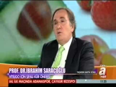Vitiligo Hastalığı Tedavisi İbrahim Saraçoğlu Vitiligo Nasıl Tedavi Edilir Bitkisel Çözüm