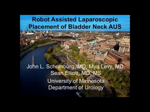 Implantacja sztucznego zwieracza cewki moczowej w asyście robota chirurgicznego