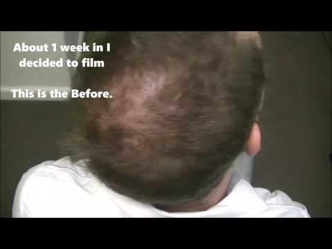 Dr. kozhevatkin hair mask review