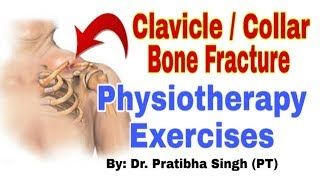 Collar Bone Fracture Exercises in Hindi | Clavicle Bone Fracture Exercises / Physiotherapy