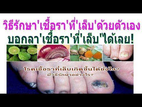 Neurodermatitis 20 ปี