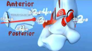 Lauge Hansen PER Pronation External Rotation (Eversion) Ankle Fracture