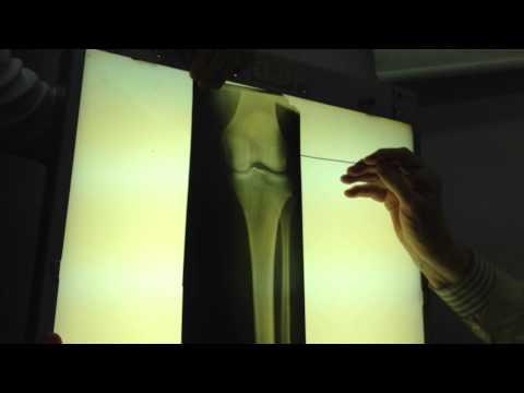 Рентген коленного сустава 2