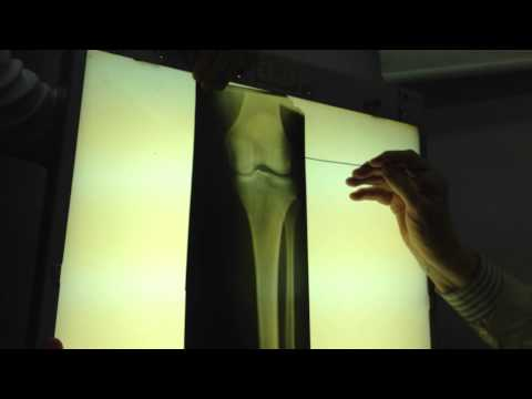 Протезы тазобедренного сустава zimmer