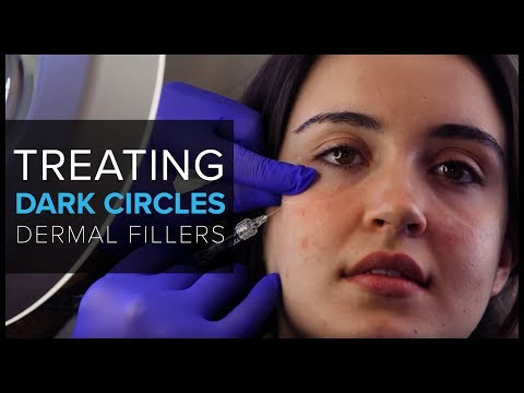 Treating Dark Circles with Dermal Fillers