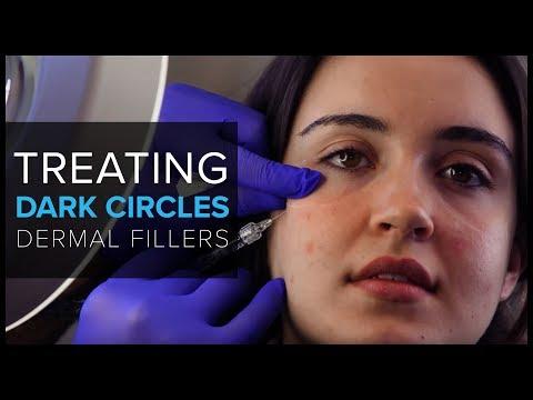 Markell facial mask ultralifting kape na may gatas