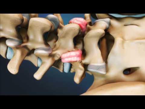Блокады фасеточных суставов