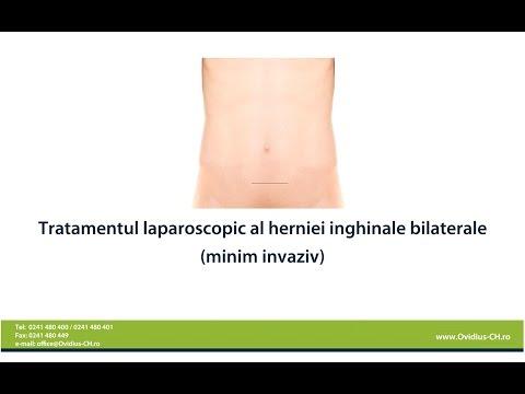 Tratamentul medical al artrozei