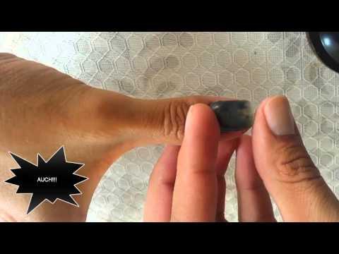 El hongo de las uñas que si