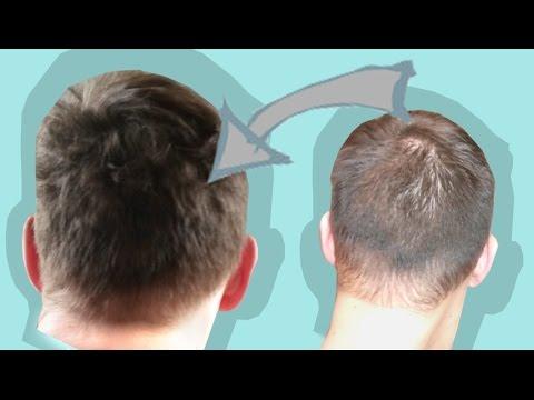 Es prolabiert das Haar über dem Ohr
