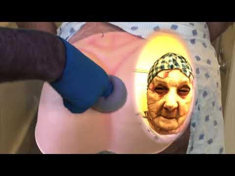 Ascaris-kezelés alternatív módszerekkel