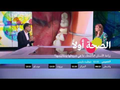 العرب اليوم - تعرف على  زراعة الأسنان الناجحة