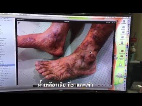 Lavomax และโรคสะเก็ดเงิน
