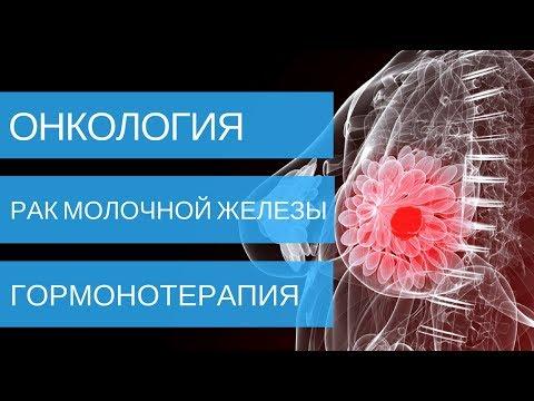 РАК МОЛОЧНОЙ ЖЕЛЕЗЫ - гормонотерапии при лечении 1, 2, 3, 4 стадии