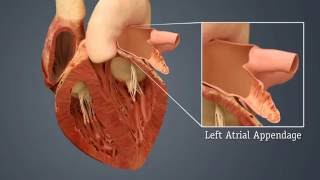 WATCHMAN LAAC Implant