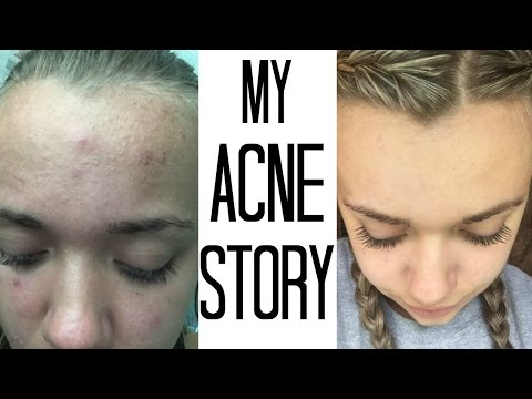 Video HOW I GOT RID OF MY ACNE