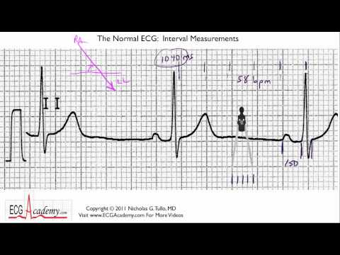 ECG Interpretation, Interval Measurements, Part 6-4