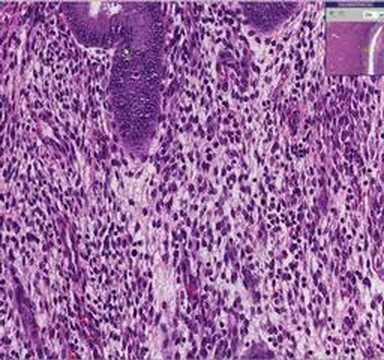 Eritropoietin által kiváltott vérszegénység