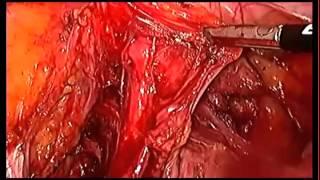 Мастер-класс: лапароскопическая анатомия малого таза