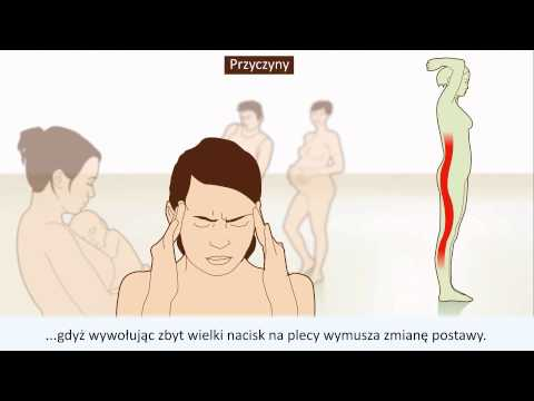Ze względu na to, co może boleć kark podczas obracania głowy