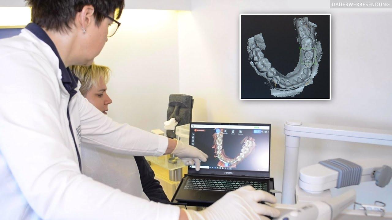 Digitaler Zahnabdruck