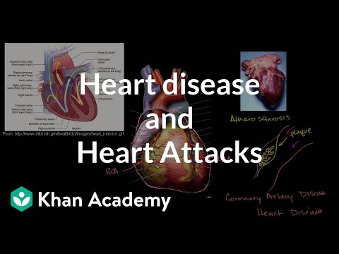 A thumbnail for: Circulatory system diseases