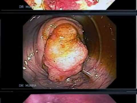 Cancer pancreas guerison