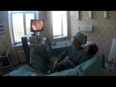 Анализ для проверки предстательной железы
